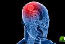 Gefahr Mobilfunk und Hirntumor bewiesen