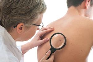 Regelmäsige Kontrolle beim Hautarzt! (©123rf.com)